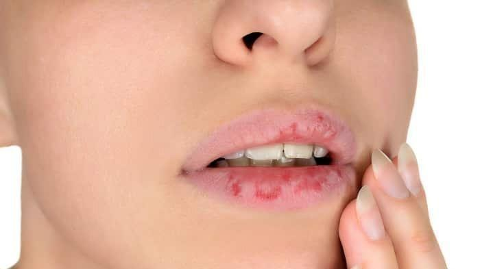 Bibir kering dan pecah-pecah sering menjadi salah satu pengganggu kepercayaan diri seseorang, berikut terdapat 5 cara alami untuk mengatasinya.