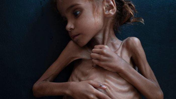 Kisah Amal Hussain, Sisi Lain dari Dampak Perang Saudara di Yaman