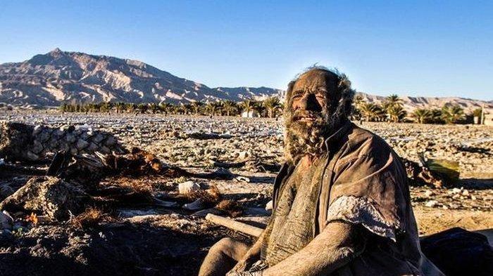 Sosok Amou Haji, Dijuluki Manusia Terkotor di Dunia, 70 Tahun Tak Pernah Mandi