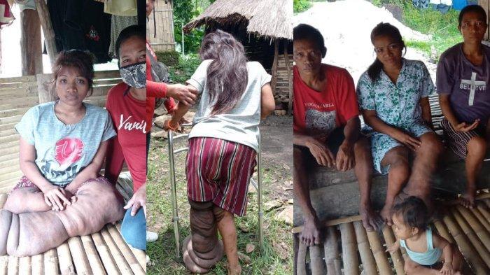 Anastasia Arnonce Lence, gadis asal Sumba Barat Daya, NTT  yang menderita penyakit kaki gajah sejak kecil, berikut kisahnya.