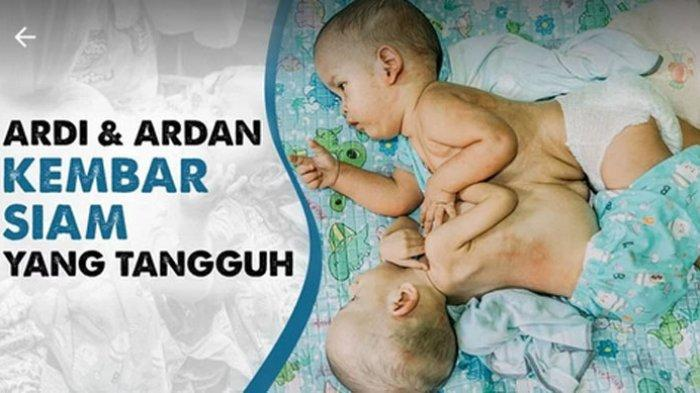Terharu Usai Operasi Pemisahan Anak Kembarnya Berhasil, Suara Orangtua Ardi dan Ardan Bergetar