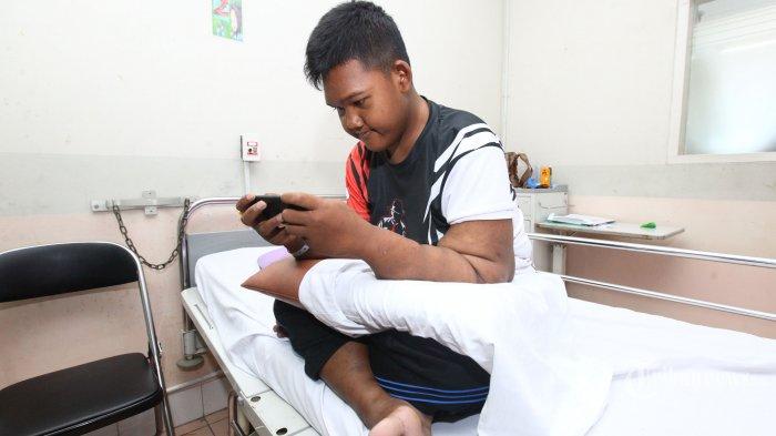 Aria Permana, pasien anak obesitas asal Karawang, Jawa Barat, tengah asyik bermain gim di ponselnya di Rumah Sakit Hasan Sadikin (RSHS), Jalan Pasteur, Kota Bandung, Selasa (23/7/2019). Aria Permana, bocah berusia 13 tahun yang bobot tubuhnya pernah mencapai 192 kg dan kini sudah menyusut sekitar 106,5 kg itu akan menjalani operasi tahap pertama yaitu mengangkat kulit bergelambir bagian lengan kanan dan kiri pada Rabu (24/7/2019). Tribun Jabar/Gani Kurniawan