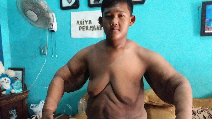 Ingat Remaja Seberat 192 Kg di Karawang? Beratnya Turun Drastis, Butuh Rp 200 Juta untuk Operasi