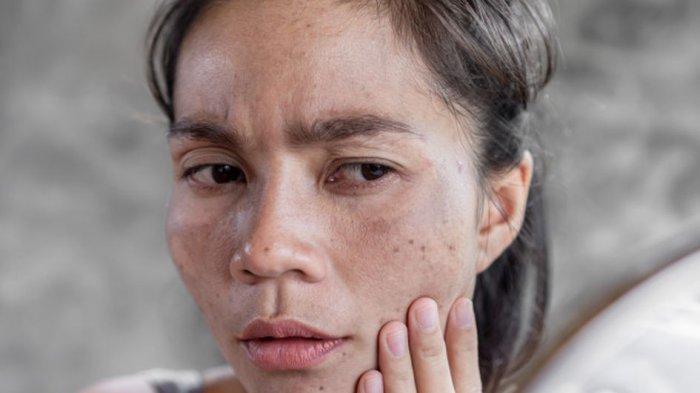 Jangan Disepelekan, Ini Cara Mencegah Hiperpigmentasi pada Kulit Wajah