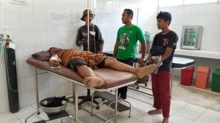 Berniat Pindahkan Gajah Betina, Asisten Pawang Terluka Diserang Gajah Jantan