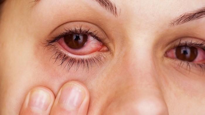 Ketahui Risiko Mengucek Mata Saat Kemasukan Debu atau Benda Asing, Jangan Anggap Sepele