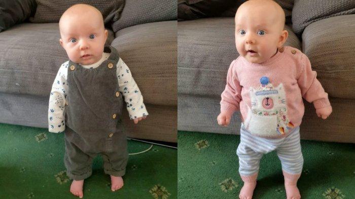 Lula, bayi berusia 15 minggu di Inggris, sudah mampu berdiri sendiri tanpa bantuan.