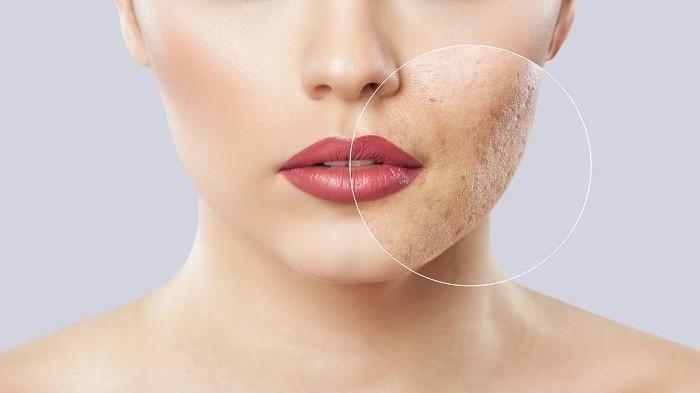 Cara Angkat Sel Kulit Mati untuk Wajah Makin Cerah, Gunakan Skincare yang Sesuai