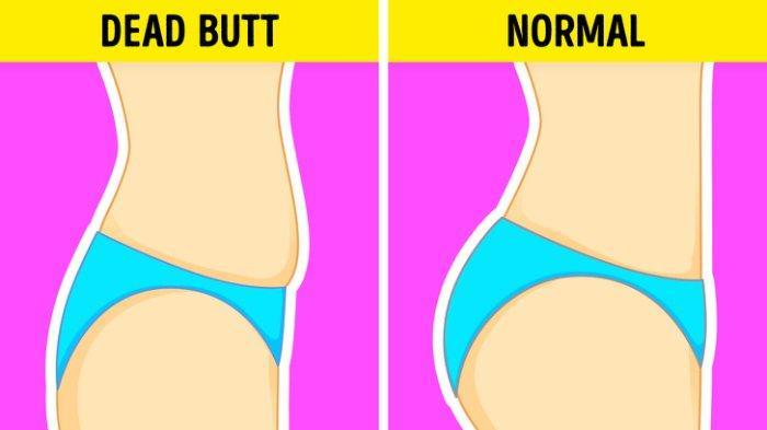 Bentuk Pantat Ternyata Bisa Ungkap Kondisi Kesehatan, Cek Risiko Penyakit yang Mengintaimu saat Ini!