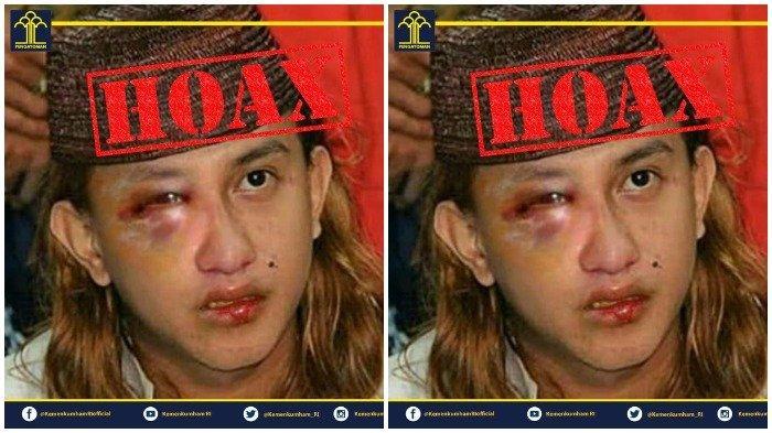 Hoaks Kabar Habib Bahar bin Smith Dianiaya di Lapas Cibinong, Ini Penjelasan Kemenkumham
