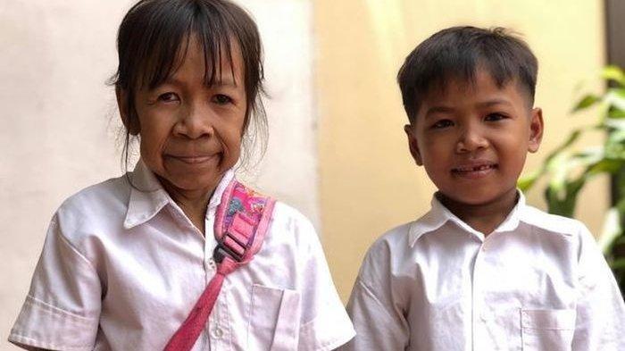 Anak SD Berusia 10 Tahun Sering Dipanggil 'Nenek' karena Penampilannya, Tak Pernah Dapat Perawatan