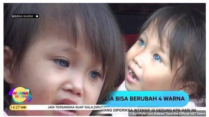 Viral Bocah Perempuan Asal Bandung Punya 3 Warna Mata, Bisa Berubah, Sempat Dikira Alami Kebutaan.