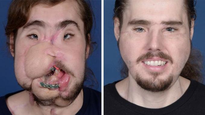 Lihat Perubahan Wajah Pria Ini Setelah Operasi