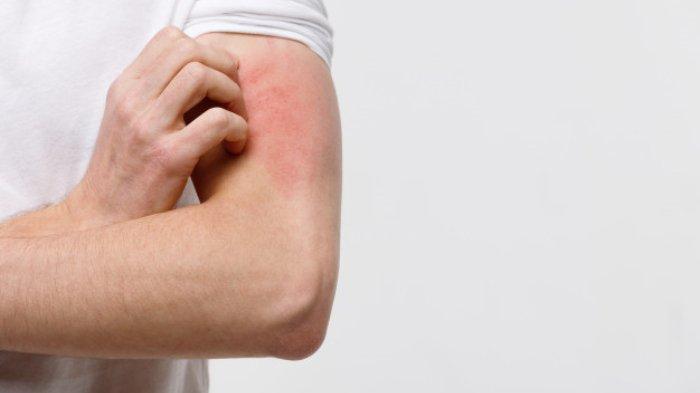 Ilustrasi Gatal-gatal akibat Alergi.