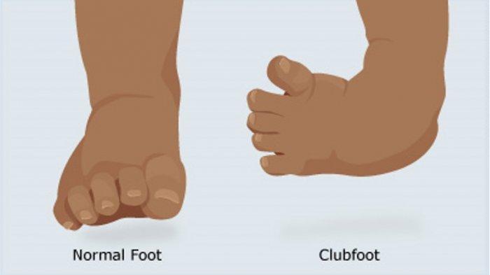 Mengenal Club Foot Pada Anak dan Cara Penanganan yang Tepat