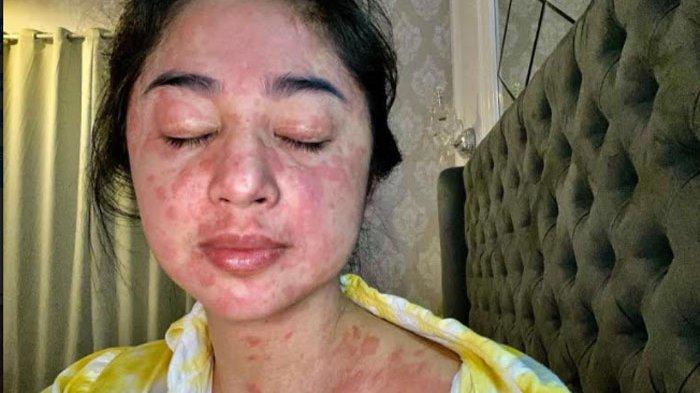 Mengaku terpapar Covid-19, Dewi Perssik bersyukur kini telah sembuh, sebelumnya Deepe mengalami gejala langka yakni kulit kemerahan.