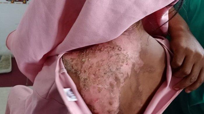 Bocah Aceh Timur Jadi Korban Penyiraman Air Panas oleh Ibu Kandung, Korban Alami Trauma