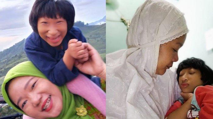 Rawat Anaknya yang Penyandang Seckel Syndrome Kena Covid-19, Sang Ibu Bebas Corona, Ini Kisahnya