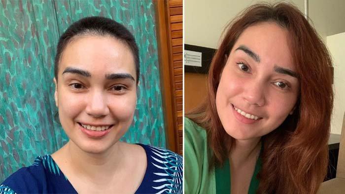 Penampilan terbaru Feby Febiola, nyaris botak karena jalani kemoterapi