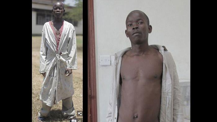 Diduga Gara-gara Digigit Nyamuk, Buah Zakar Pria Ini Bengkak hingga 5 Kilogram
