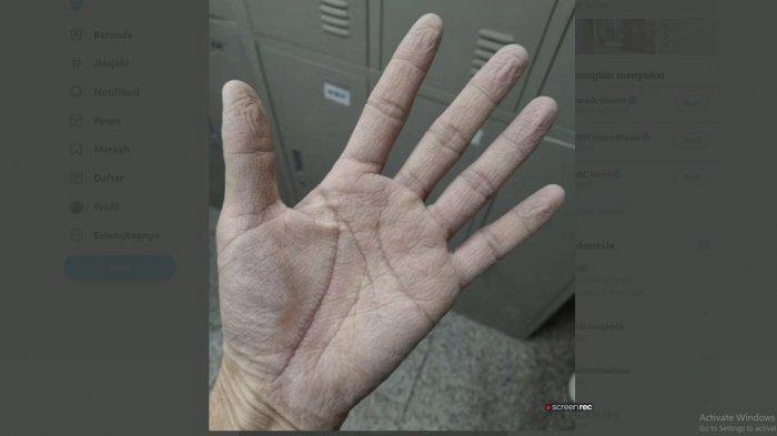 foto tangan petugas medis tampak layu