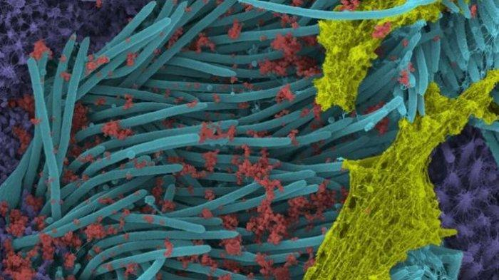 Gambar berwarna SARS-CoV-2 menginfeksi sel paru-paru manusia