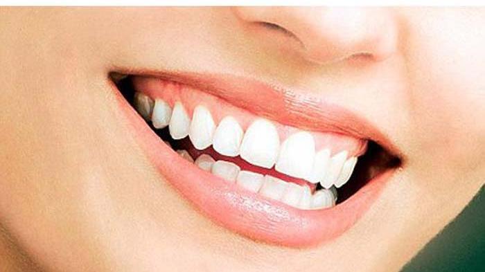 gigi putih.