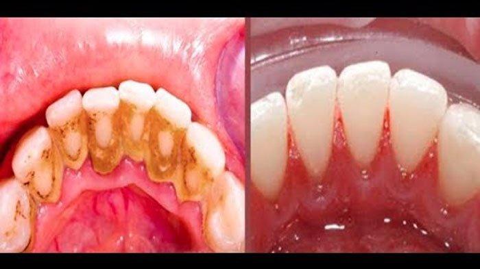 Tak Perlu ke Dokter Gigi, Berikut 3 Cara Alami Hilangkan Karang Gigi