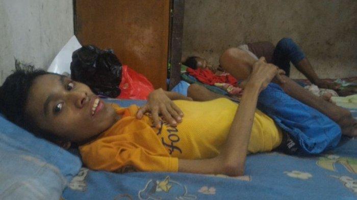 Gizi Buruk Berisiko Anak Jadi Pendek dan Berpotensi Terkena Penyakit Tak Menular