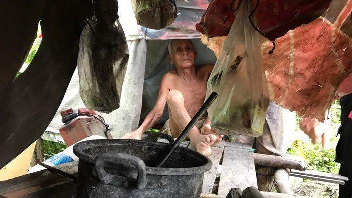 Kakek Pengidap Penyakit Kaki Gajah Tinggal di Gubug Berukuran 1x2 Meter