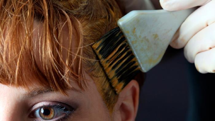 Hati-hati Pilih Cat Rambut, Bahan Kimia di Dalamnya Picu Vitiligo, Kulit Jadi Belang-belang Putih