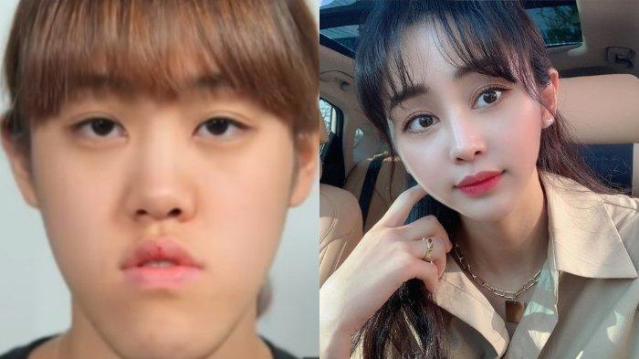 Seorang gadis asal Korea Selatan, Heo Ye Eun, menceritakan tentang perubahan sikap orang-orang padanya setelah ia operasi plastik.