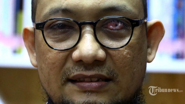 Pelaku Penyiraman Air Keras Pernah Ditegur Tetangga saat Intai Rumah Novel Baswedan