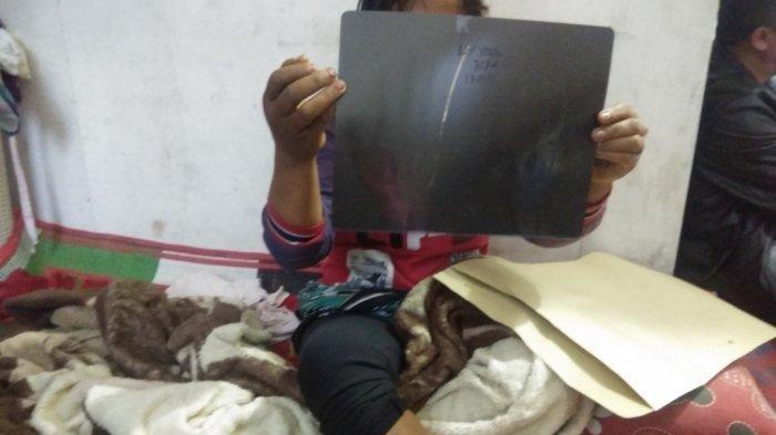 Korban penganiayaan yang bermula karena dituduh mencuri Yenda Marlina br Hutagaol, menunjukkan berkas laporan dan hasil rongent di rumahnya, di kawasan Kecamatan Simpangempat, Jumat (22/11/2019). TRIBUN MEDAN/M ANDIMAZ KAHFI