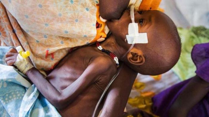Derita Ibu-ibu di Sudan, Tak Bisa Menyusui Anaknya Karena Kelaparan Hebat