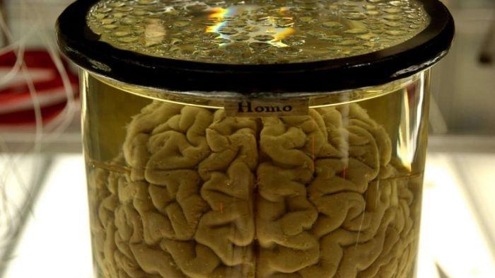 Ilmuwan Temukan Cara Sembuhkan Ingatan yang Hilang, Cocok Bagi yang Takut Amnesia