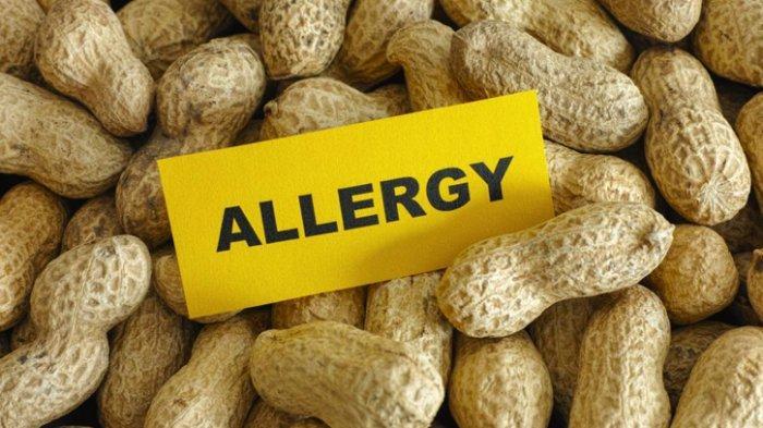 Bolehkan Seseorang yang Memiliki Alergi Obat dan Makanan Terima Vaksin Sinovac?