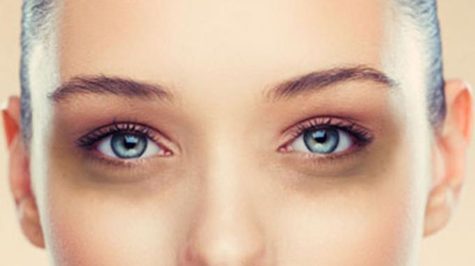 5 Cara Mengatasi Kantung Mata Secara Alami, Ikuti Langkah Berikut Ini