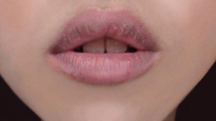 Cara Menghilangkan Bibir Hitam dengan Bahan Alami, Gunakan ...