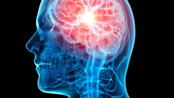 4 Latihan Fisik Ini Bermanfaat untuk Kebugaran Otak