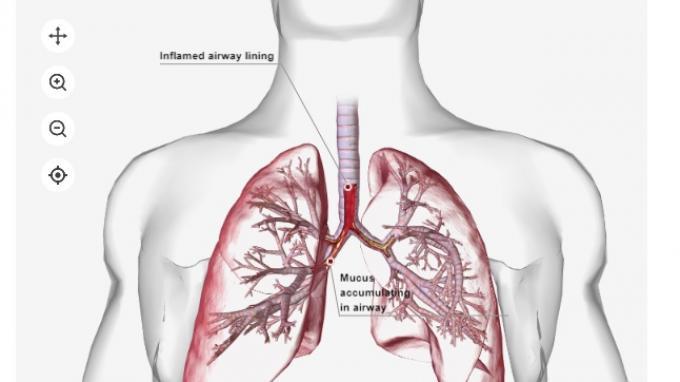 Ilustrasi Gambar Pneumonia