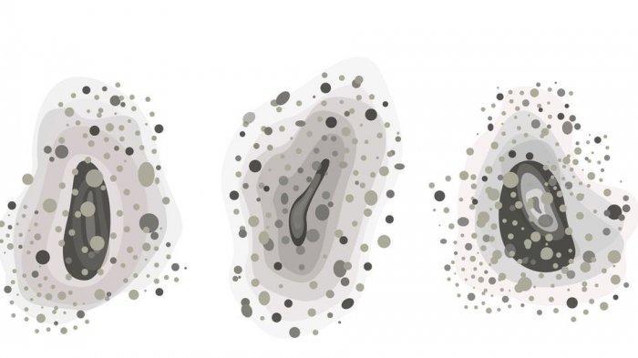 Kenali Infeksi Jamur Hitam yang Menyerang Seseorang Pasca Covid-19