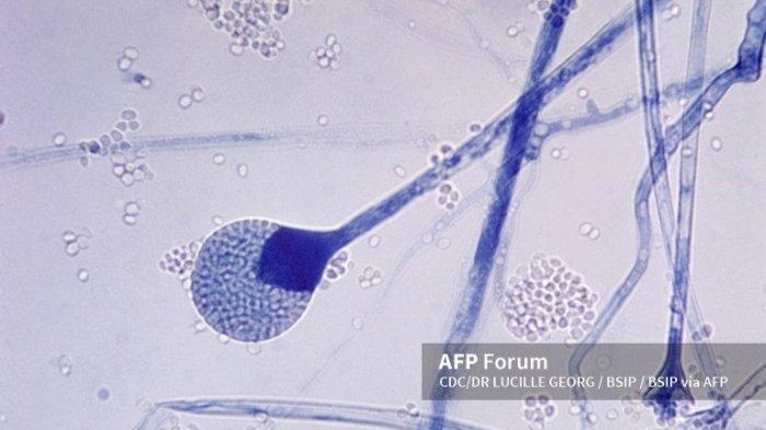 ILUSTRASI Infeksi Jamur - Fotomikrograf memperlihatkan sporangium dewasa dari jamur Mucor sp. Mucor sp adalah jamur dalam ruangan yang umum, dan merupakan salah satu jamur penyebab kelompok infeksi yang dikenal sebagai zygomycosis.
