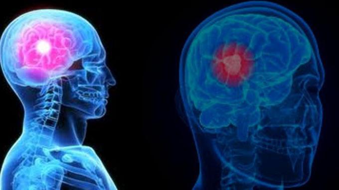 Ilustrasi kanker otak