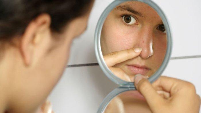 Simak 4 Tips Menghilangkan Komedo di Hidung Secara Alami, Pakai Madu hingga Lemon