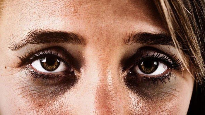 Ilustrasi - Lingkaran hitam pada mata atau mata panda.(medicalnewstoday.com)