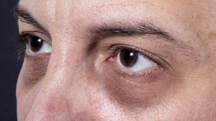 Mau Tahu Penyebab Munculnya Lingkaran Hitam di Mata? Kurang Tidur Bukan Satu-satunya Pemicu