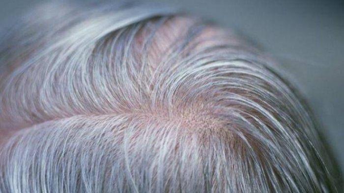 Solusi Rambut Beruban: Bawang Merah dan Kapur Barus, Bagaimana Caranya?