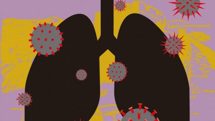 Benarkah Fungsi Paru-paru Penyintas Covid Tidak Bisa Normal Lagi? Ini Kata Ahli