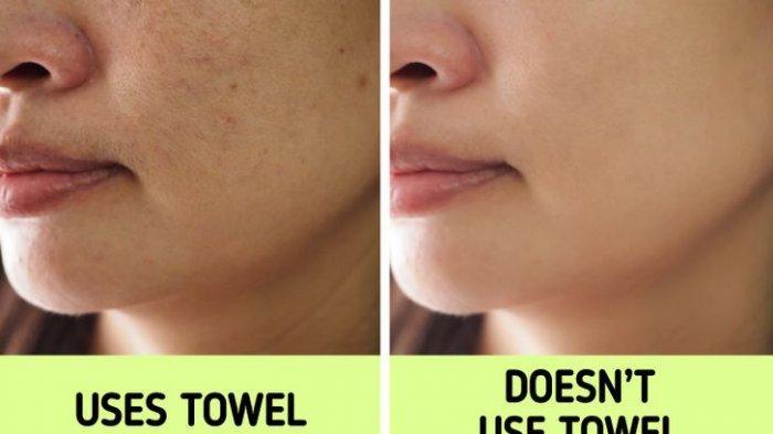 Hentikan Keringkan Wajah dengan Handuk, Bisa Memicu Timbulnya Jerawat hingga Pori-pori Besar